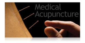 Medical Acupuncture Calgary